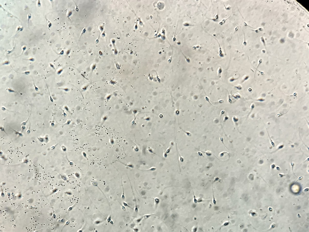 A low sperm count: symptoms, causes and treatment