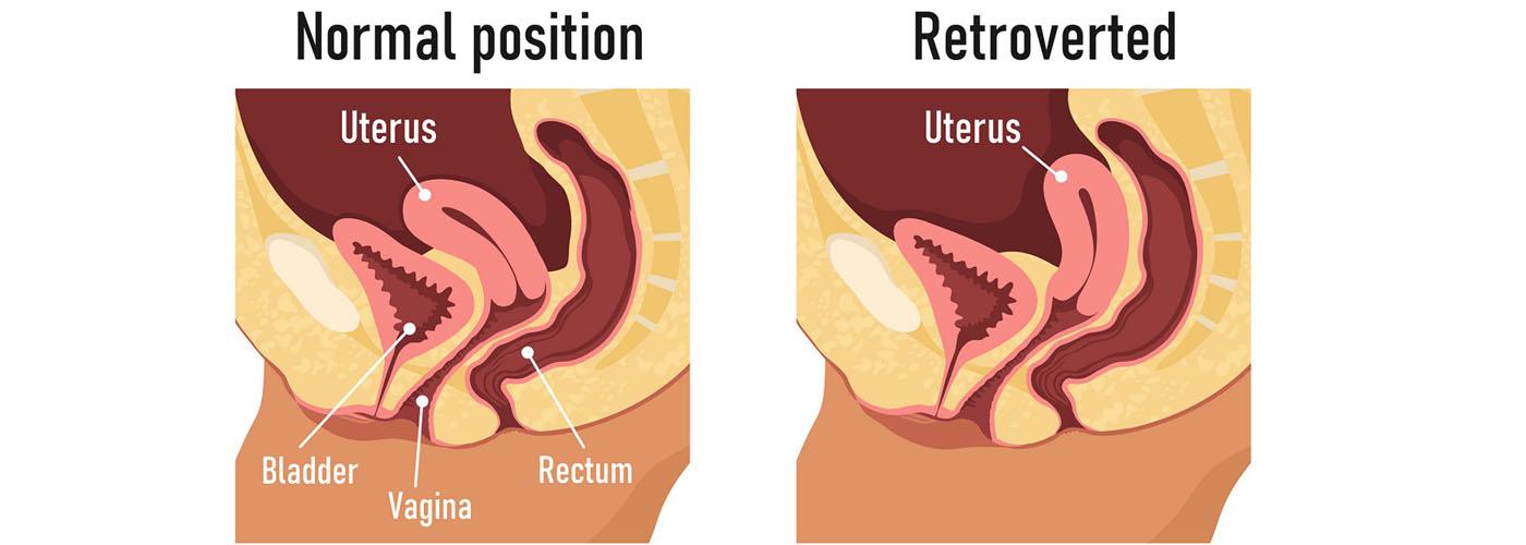 retroverted uterus pregnant